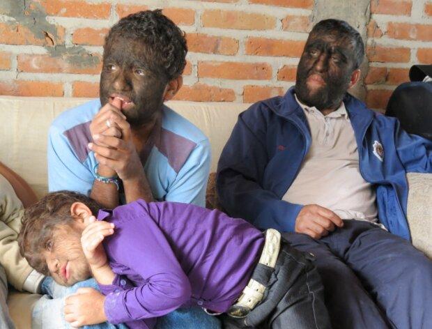Wie die haarigste Familie der Welt lebt