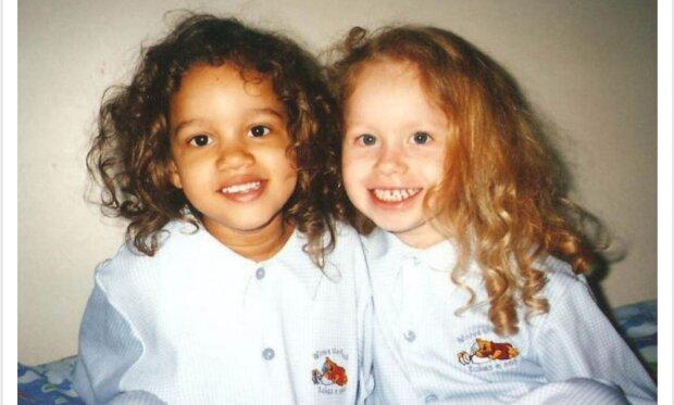Die Geschichte der Zwillinge, die mit unterschiedlicher Hautfarbe geboren wurden