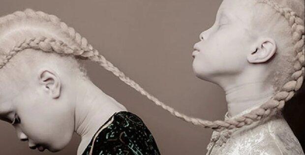 """""""Ungewöhnliche, seltene Schönheit"""": Albino-Zwillinge wuchsen zu Models heran. Wie sie sich verändert haben"""
