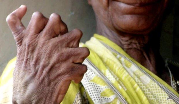Die 63-jährige Inderin hat 19 Zehen und 12 Finger an den Händen