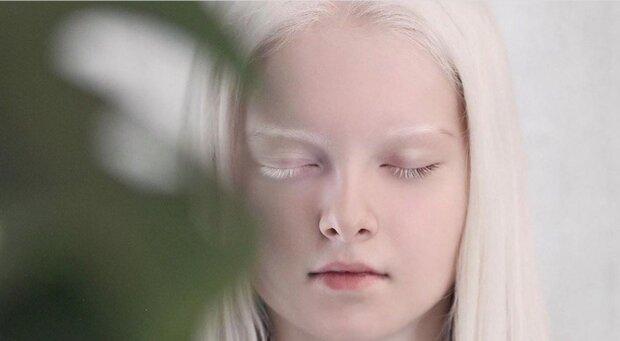 """""""Fabelhafte Schönheit"""": Wie ein Albino-Mädchen mit andersfarbigen Augen jetzt aussieht"""
