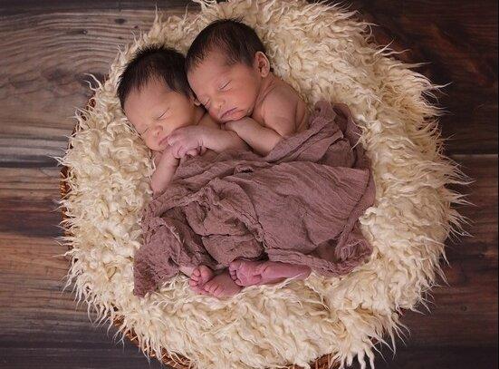 Ein Herz für zwei: Die Zwillinge hatten keine Chance zum Überleben, wie sie jetzt aussehen